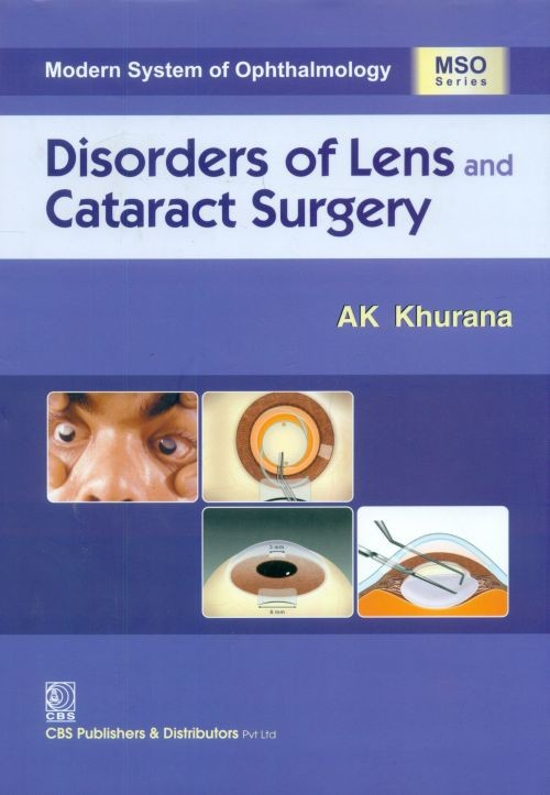 Disorders of Lens An Cataract Surgery ( 2018)