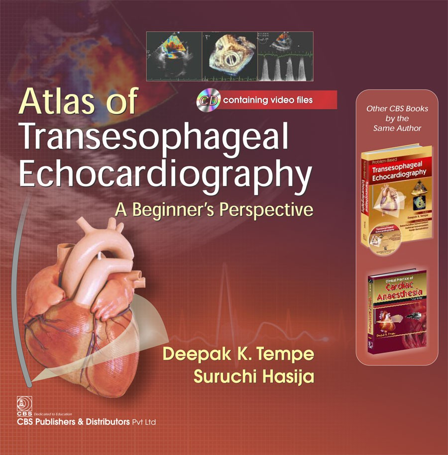 Atlas of Transesophageal Echocardiography a Beginner's Perspective Included CD containing video files