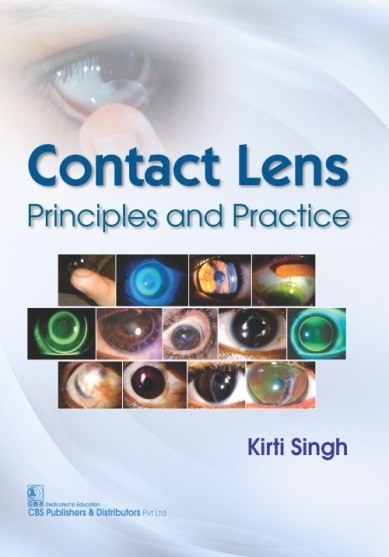 Contact Lens Principles and Practice