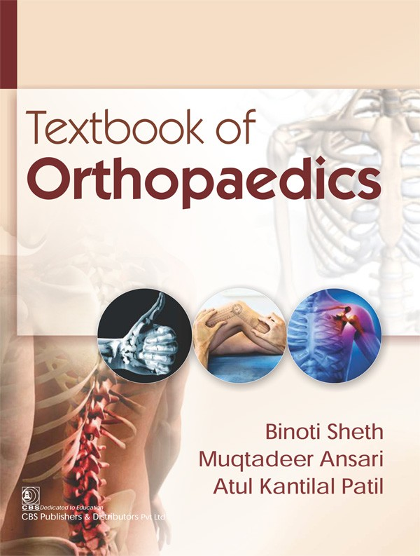 Textbook of Orthopedics