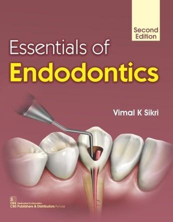 Essentials of Endodontics, 2/e
