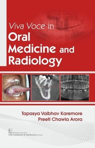 Viva Voce in Oral Medicine and Radiology