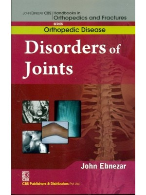 Disorders Of Joints (Handbooks In Orthopedics And Fractures Series, Vol. 32: Orthopedic Disease)