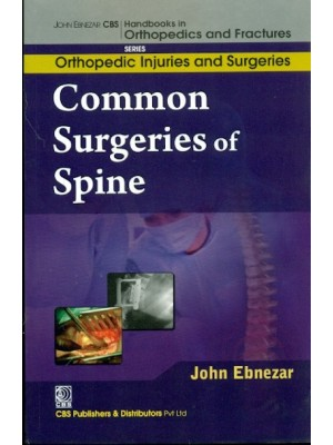Common Surgeries Of Spine (Handbooks In Orthopedics And Fractures Series, Vol. 59-Orthopedic Injuries And Surgeries)