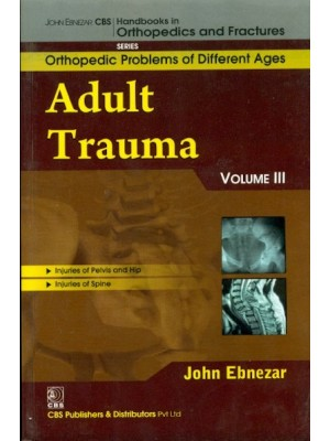 Adult Trauma , Vol.111 ( Handbooks In Orthopedics And Fractures Series, Vol. 77-Orthopedic Problems Of  Different Ages)