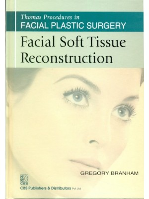 Facial Soft Tissue Reconstruction (Thomas Procedures In Facial Plastic Surgery)- Sie