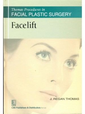 Thomas Procedures in Facial Plastic Surgery: Facelift