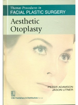 Aesthetic Otoplasty (Thomas Procedures In Facial Plastic Surgery)-Sie