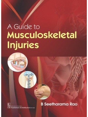 A Guide to Musculoskeletal Injuries