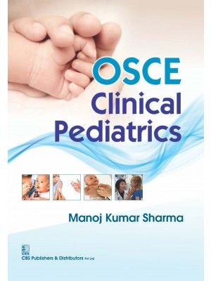 Osce Clinical Pediatrics