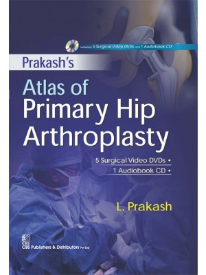 Prakash Atlas of Primary Hip Arthroplasty
