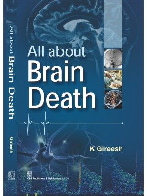 All About Brain Death