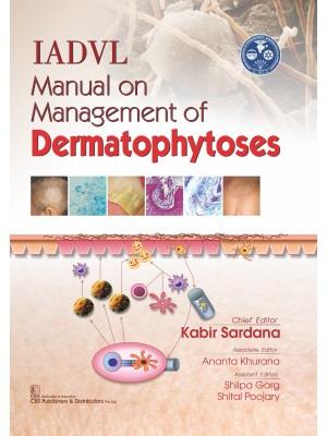 IADVL Manual on Management of Dermatophytoses
