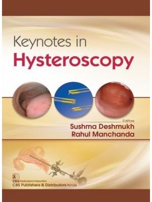 Keynotes in Hysteroscopy