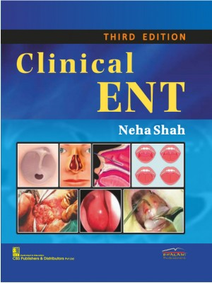 Clinical ENT, 3/e